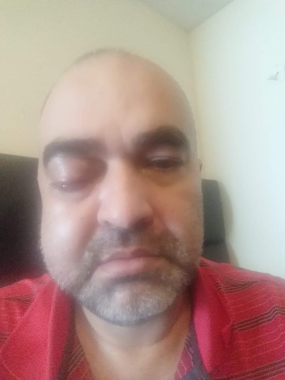 Mirko Mello, enfermo del hongo negro